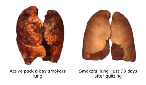 Essay on harmful effects of smoking in hindi